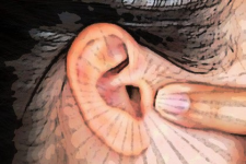 Simple Method Ends Tinnitus (Ear Ringing) - It's Genius!