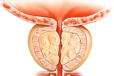New Method Shrinks Enlarged Prostate (It's Genius)