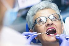 North Carolina Seniors Can Now Claim Free Dental Work Thanks to This New Benefit